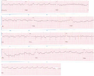 Los asteriscos vasculares sobre la persona y la agua oxigenada
